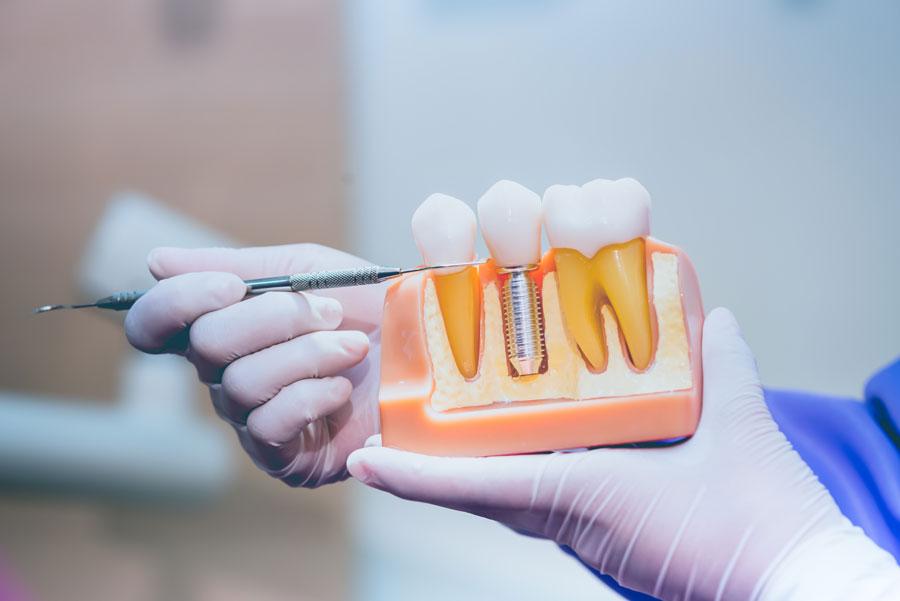 Come sostituire i denti mancanti? Dal dente singolo all'intera arcata, protesi fissa tradizionale e protesi fissa su impianti